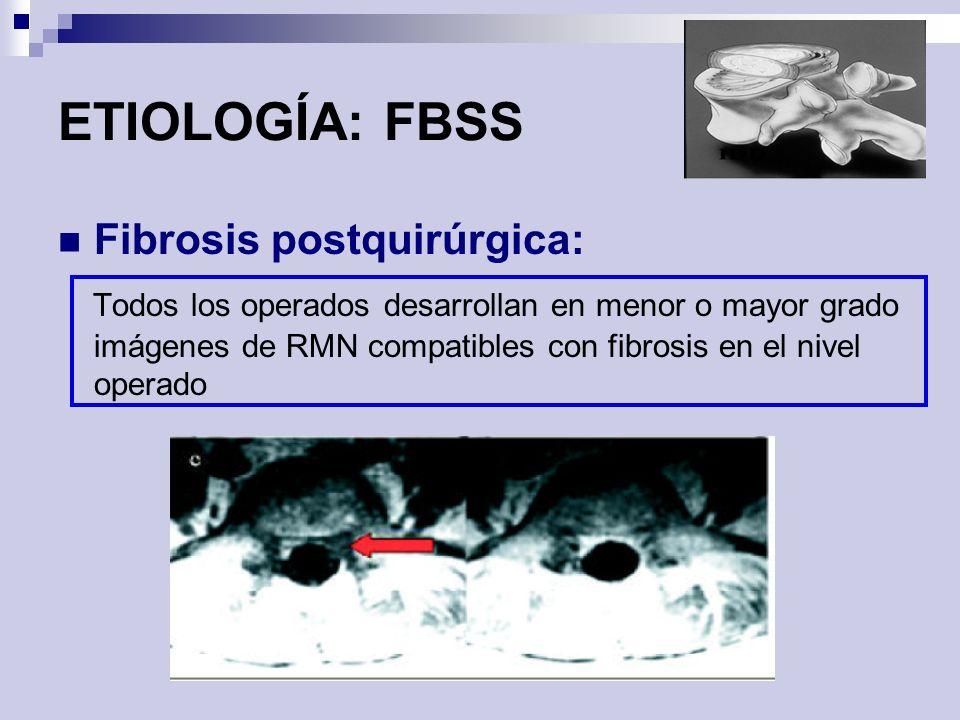 ETIOLOGÍA: FBSS Fibrosis postquirúrgica: