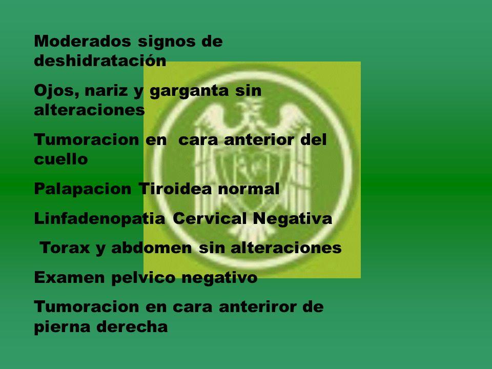 Moderados signos de deshidratación