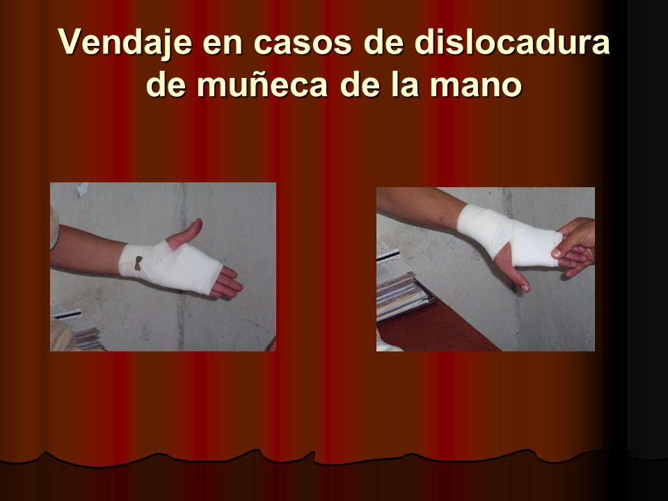 Vendaje en casos de dislocadura de muñeca de la mano