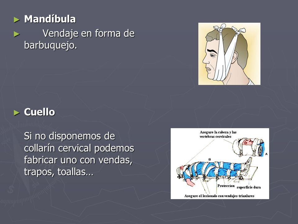 Mandíbula Vendaje en forma de barbuquejo.