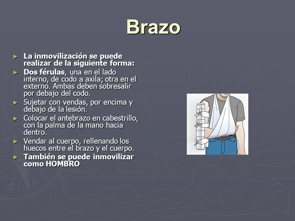 Brazo La inmovilización se puede realizar de la siguiente forma: