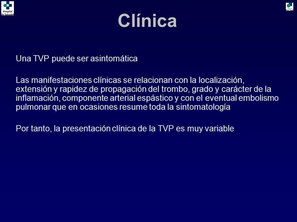 Clínica Una TVP puede ser asintomática