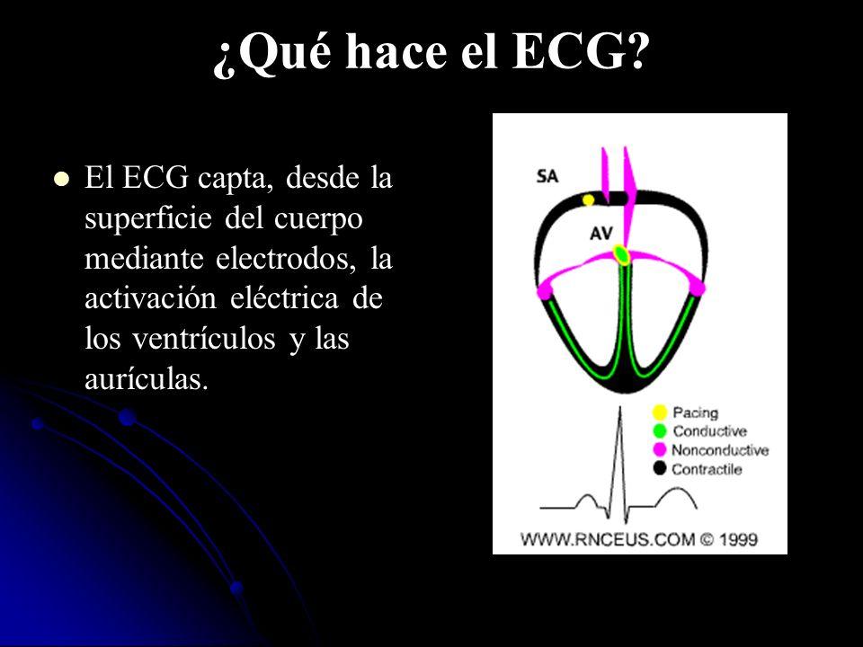 ¿Qué hace el ECG.