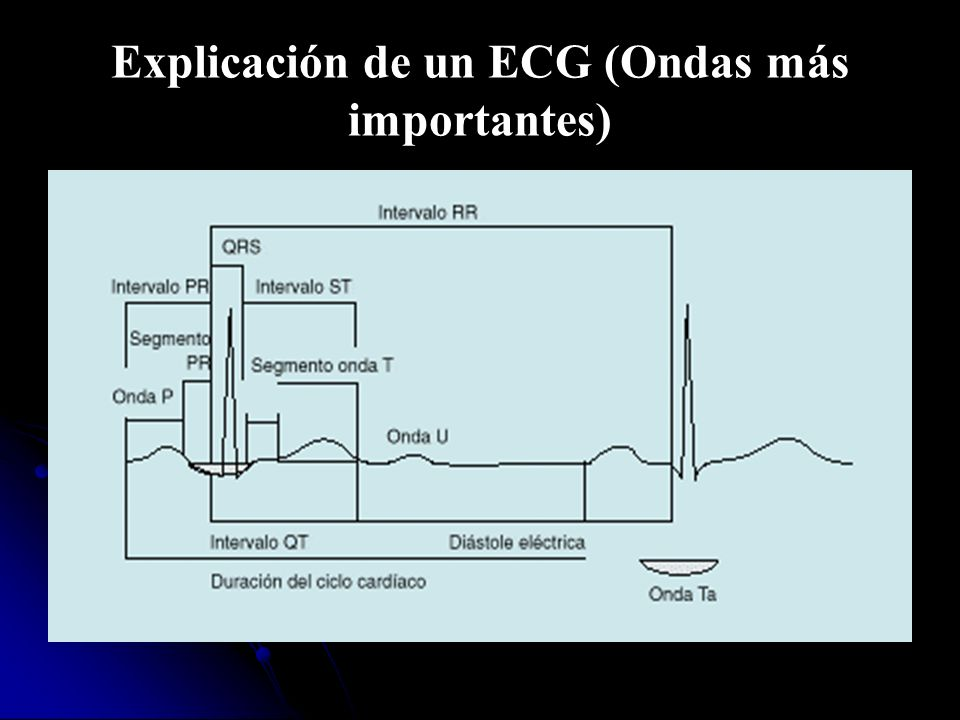 Explicación de un ECG (Ondas más importantes)