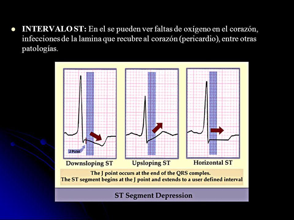 INTERVALO ST: En el se pueden ver faltas de oxígeno en el corazón, infecciones de la lamina que recubre al corazón (pericardio), entre otras patologías.