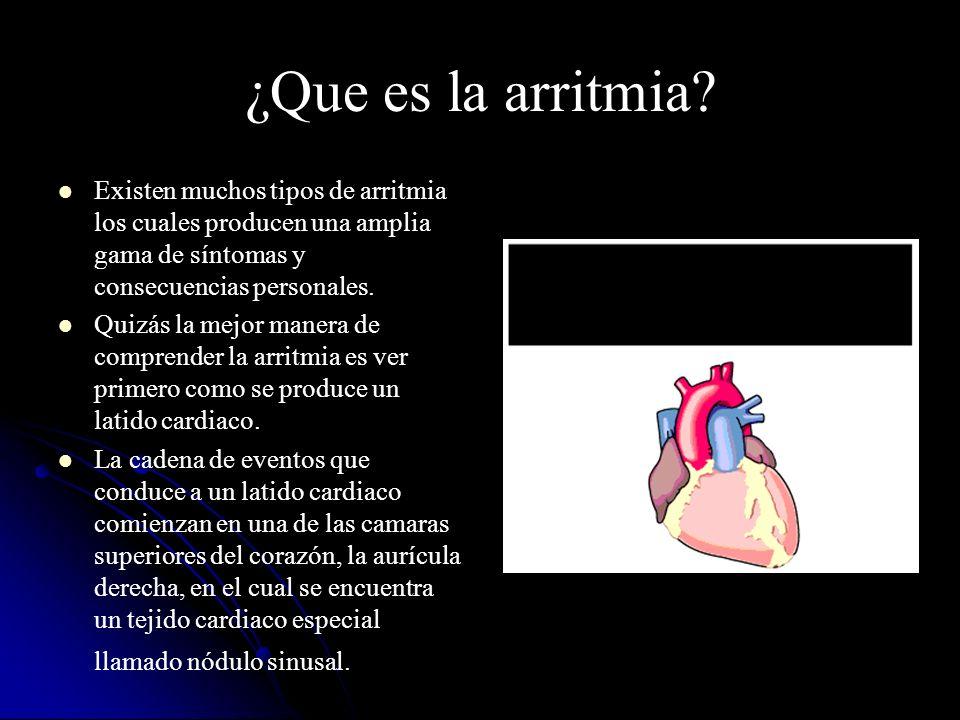 ¿Que es la arritmia Existen muchos tipos de arritmia los cuales producen una amplia gama de síntomas y consecuencias personales.