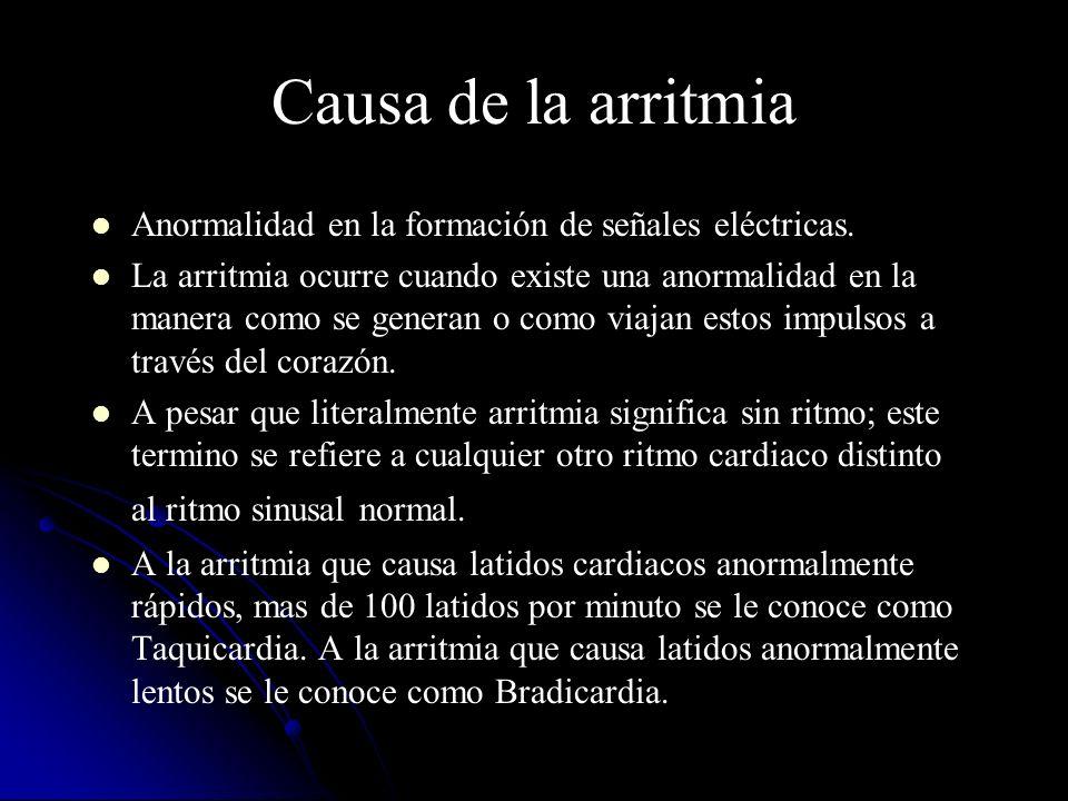 Causa de la arritmia Anormalidad en la formación de señales eléctricas.