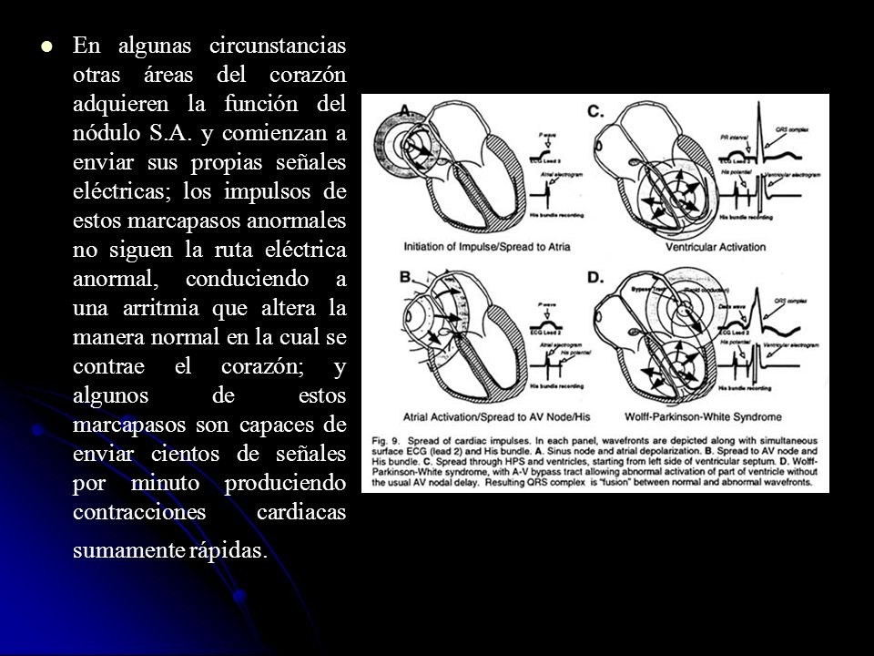 En algunas circunstancias otras áreas del corazón adquieren la función del nódulo S.A.