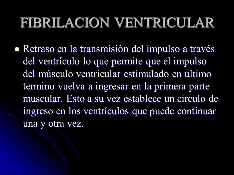 FIBRILACION VENTRICULAR