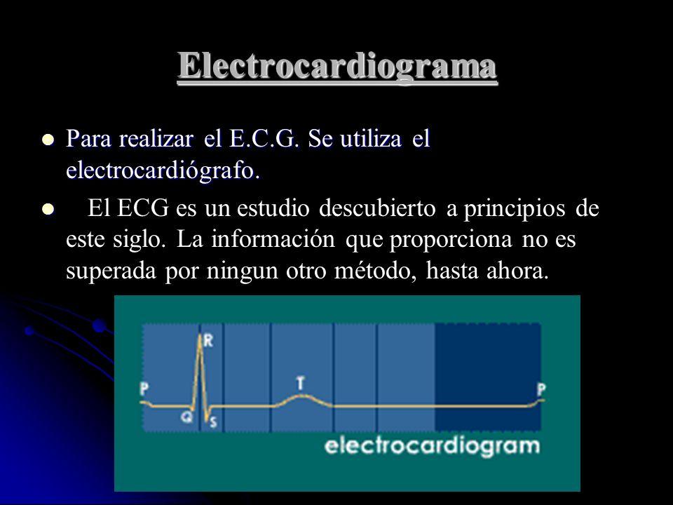 Electrocardiograma Para realizar el E.C.G. Se utiliza el electrocardiógrafo.