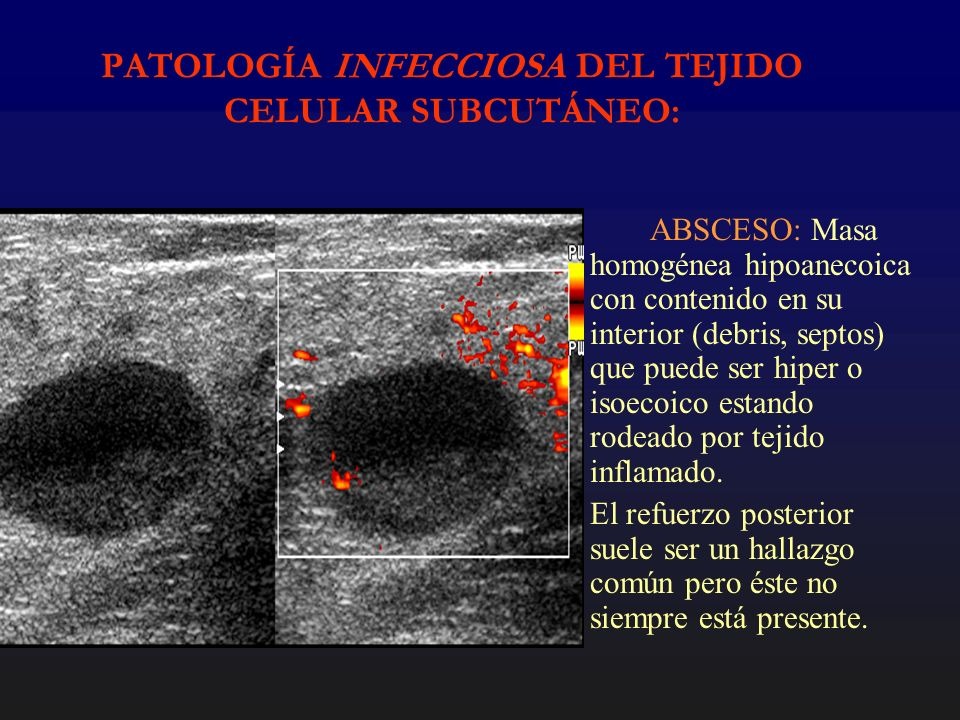 PATOLOGÍA INFECCIOSA DEL TEJIDO CELULAR SUBCUTÁNEO: