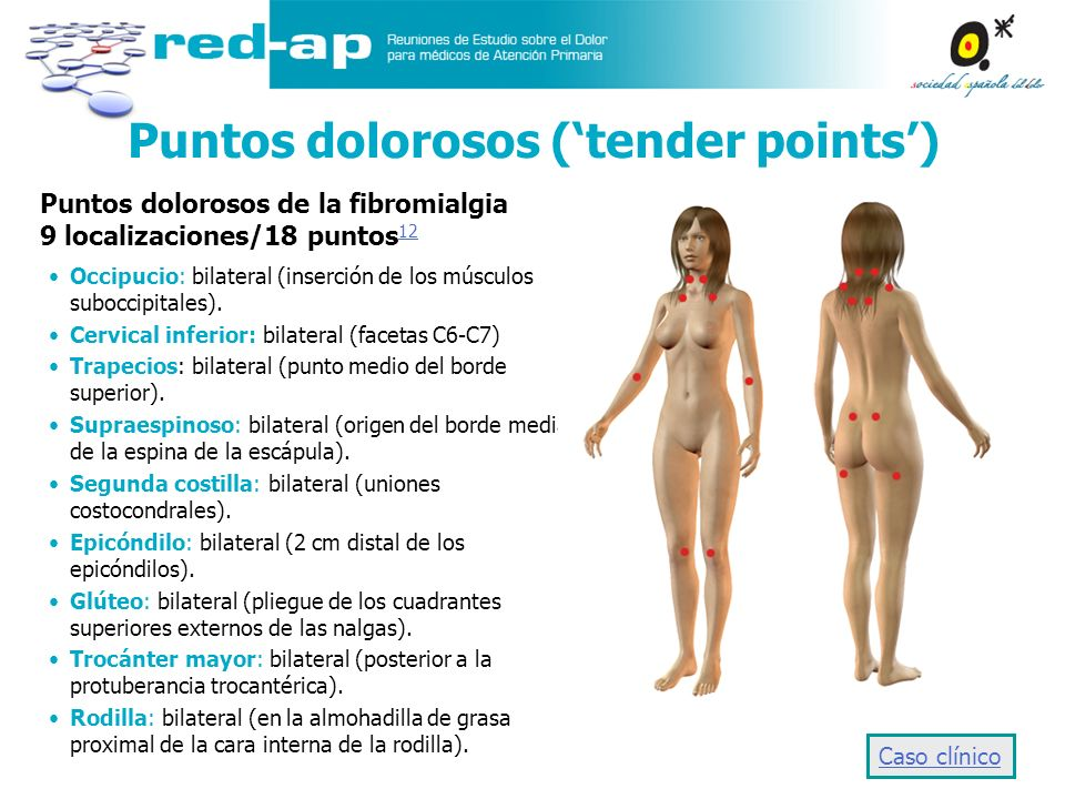 Puntos dolorosos ('tender points')