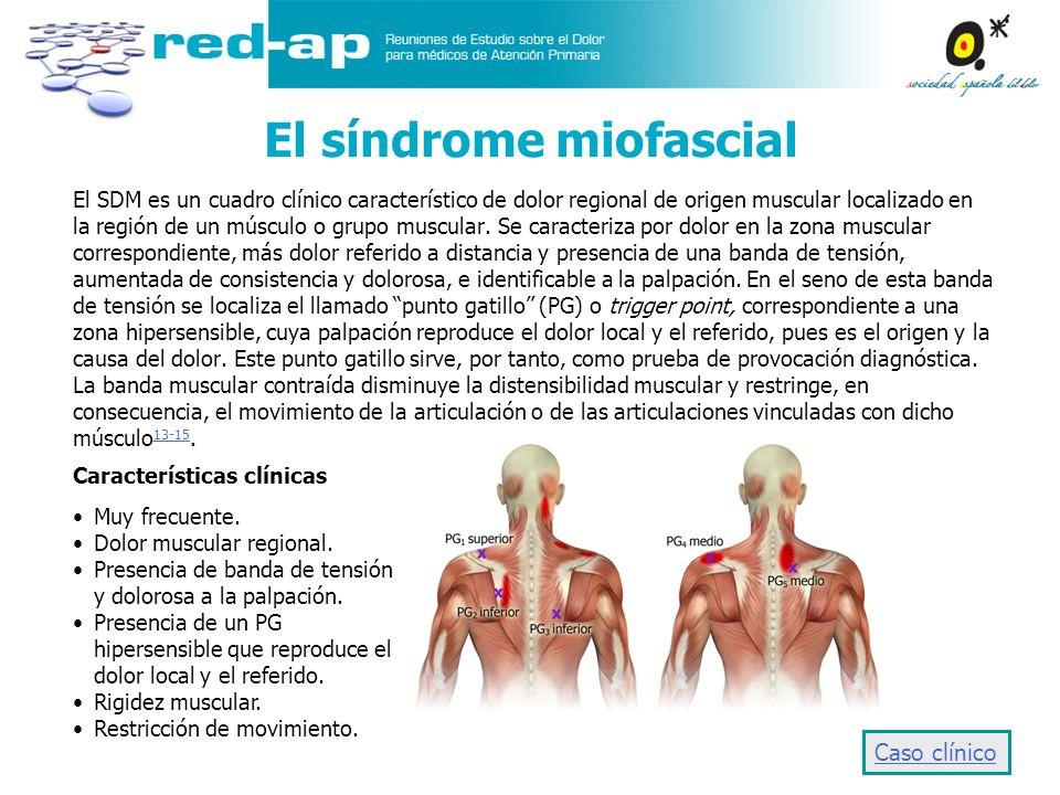El síndrome miofascial