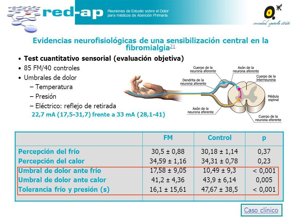 Evidencias neurofisiológicas de una sensibilización central en la fibromialgia21