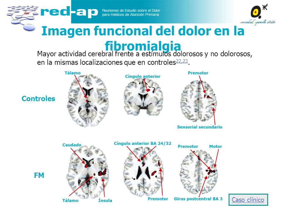 Imagen funcional del dolor en la fibromialgia