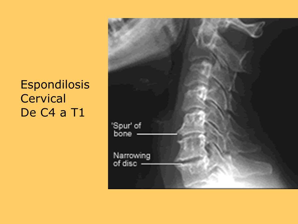Espondilosis Cervical De C4 a T1