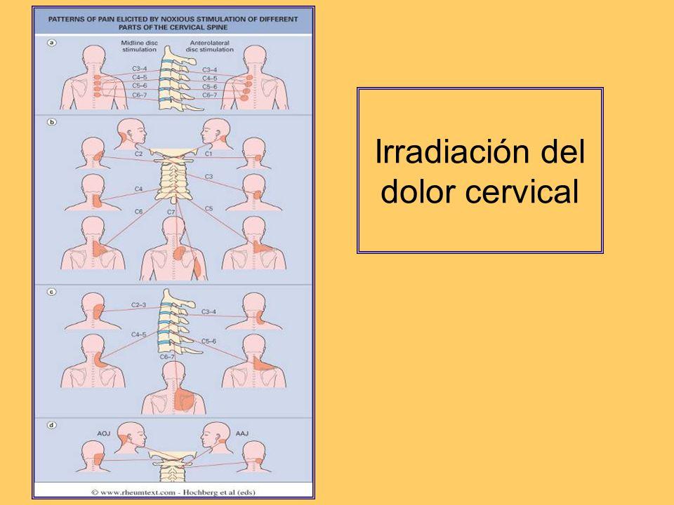 Irradiación del dolor cervical