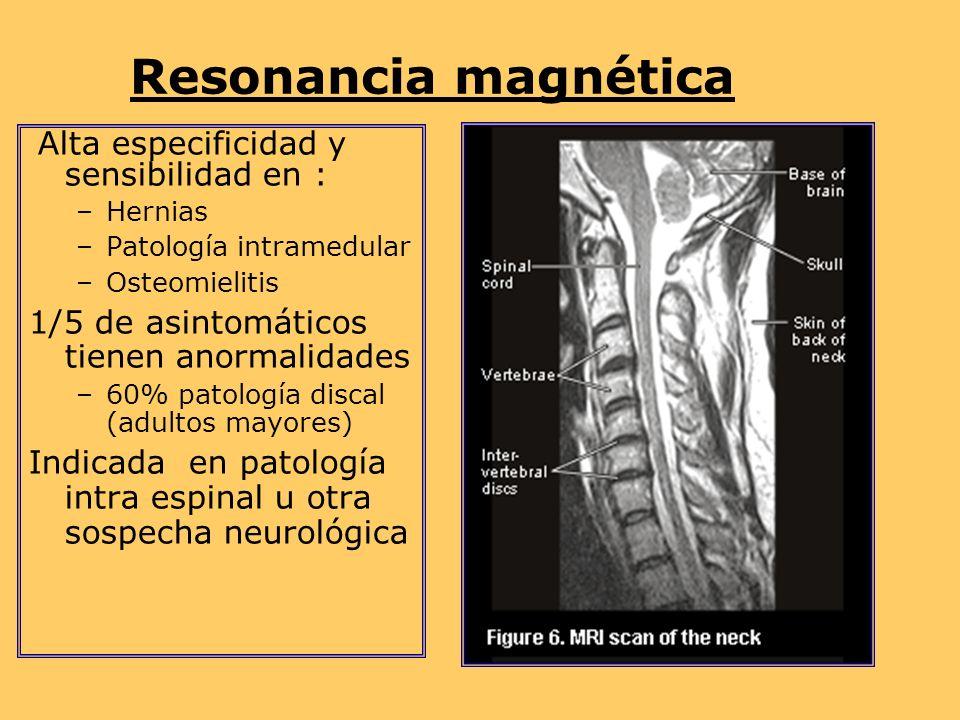 Resonancia magnética Alta especificidad y sensibilidad en :