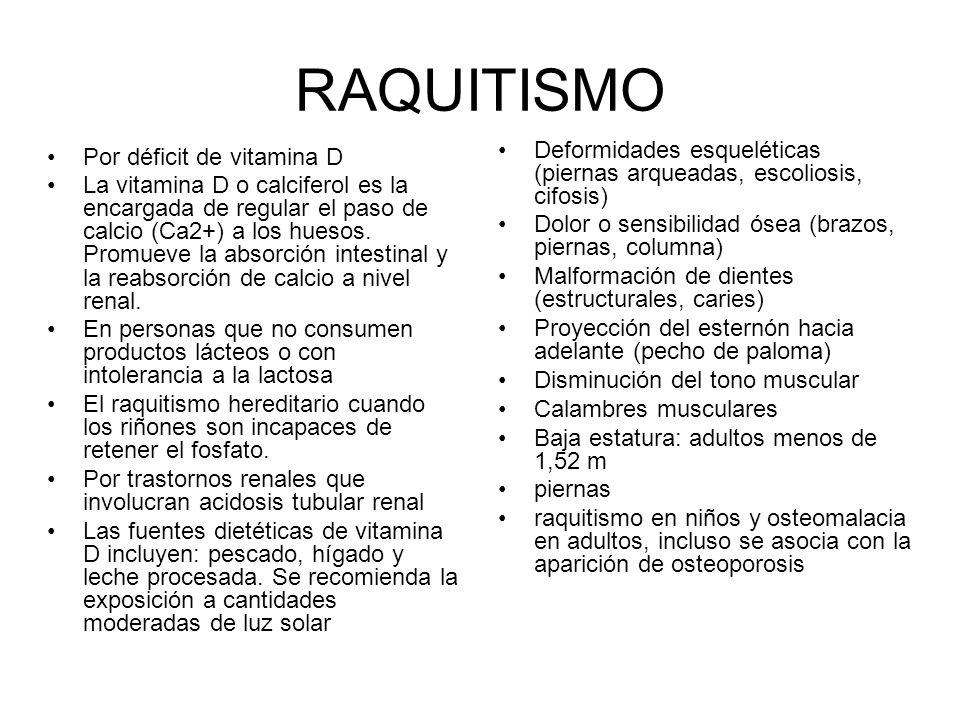 RAQUITISMO Deformidades esqueléticas (piernas arqueadas, escoliosis, cifosis) Dolor o sensibilidad ósea (brazos, piernas, columna)