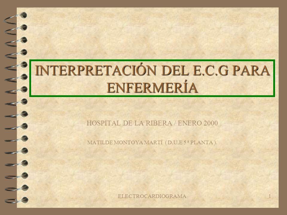 INTERPRETACIÓN DEL E.C.G PARA ENFERMERÍA
