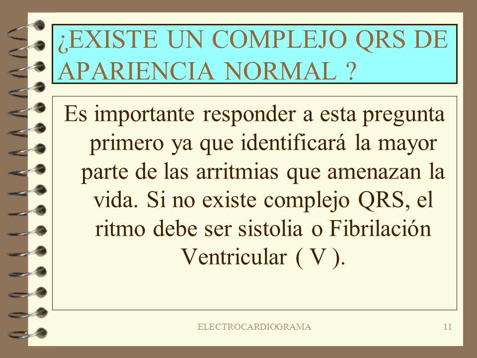 ¿EXISTE UN COMPLEJO QRS DE APARIENCIA NORMAL