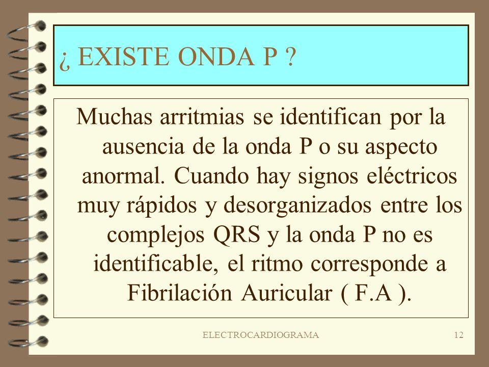 ¿ EXISTE ONDA P