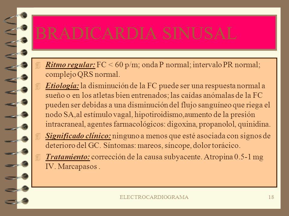BRADICARDIA SINUSAL Ritmo regular: FC < 60 p/m; onda P normal; intervalo PR normal; complejo QRS normal.