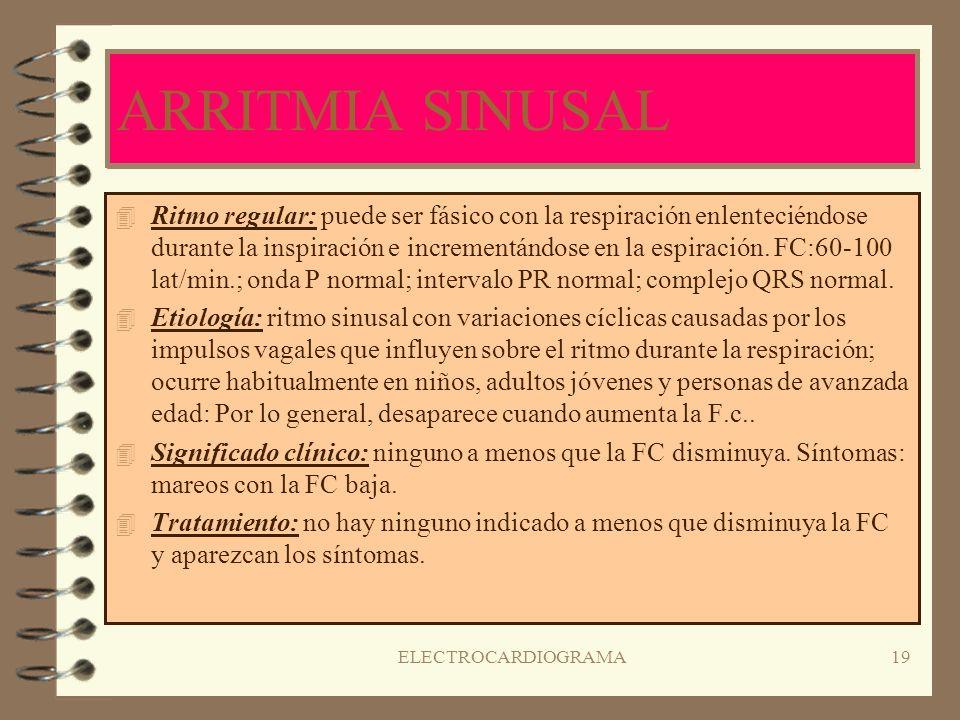 ARRITMIA SINUSAL