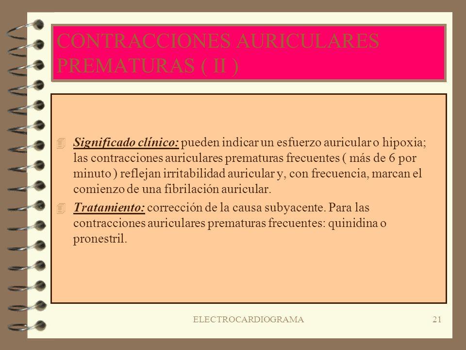 CONTRACCIONES AURICULARES PREMATURAS ( II )