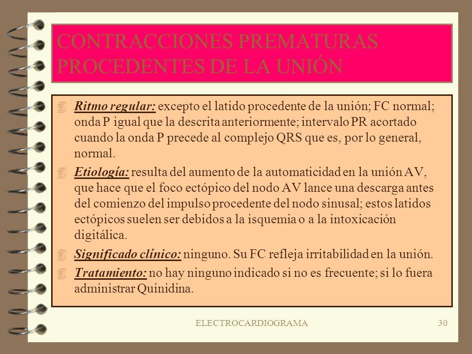 CONTRACCIONES PREMATURAS PROCEDENTES DE LA UNIÓN