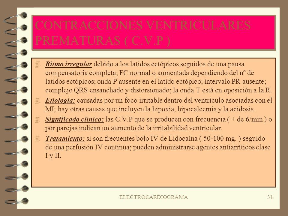 CONTRACCIONES VENTRICULARES PREMATURAS ( C.V.P )