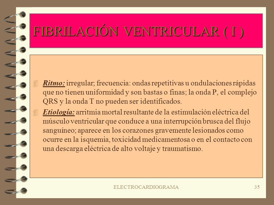 FIBRILACIÓN VENTRICULAR ( I )