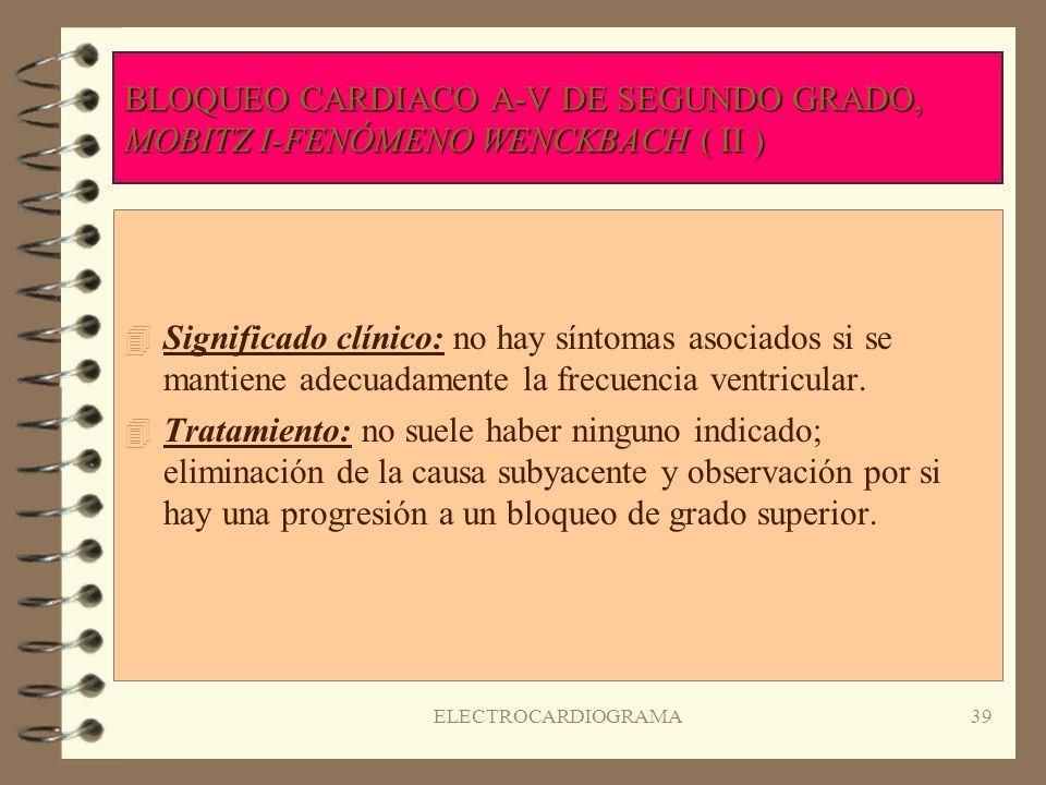 BLOQUEO CARDIACO A-V DE SEGUNDO GRADO, MOBITZ I-FENÓMENO WENCKBACH ( II )