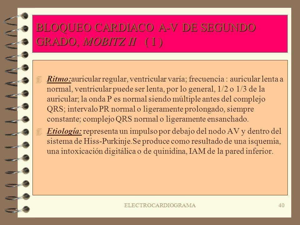 BLOQUEO CARDIACO A-V DE SEGUNDO GRADO, MOBITZ II ( I )