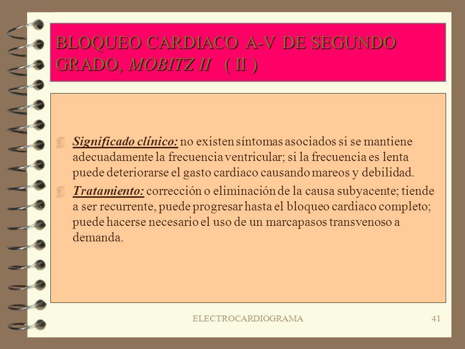 BLOQUEO CARDIACO A-V DE SEGUNDO GRADO, MOBITZ II ( II )