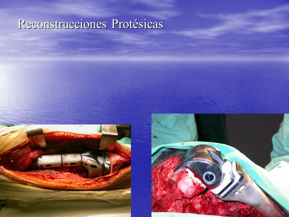 Reconstrucciones Protésicas