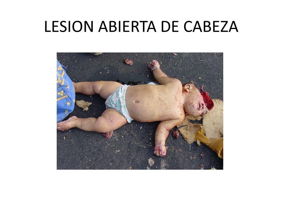 LESION ABIERTA DE CABEZA