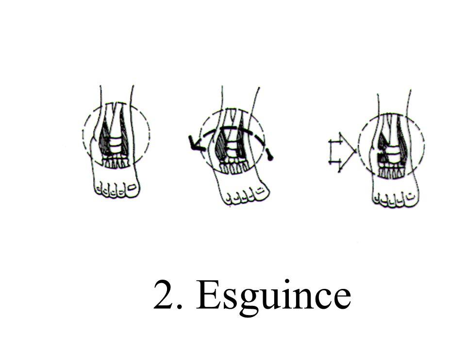 2. Esguince