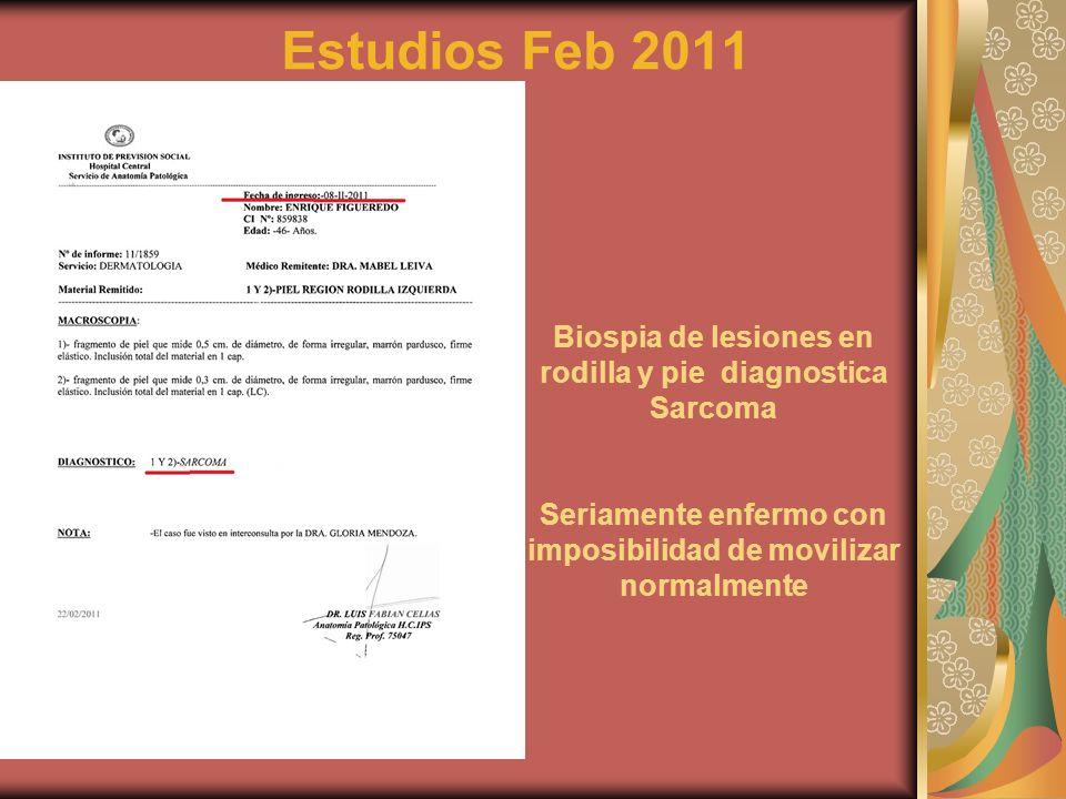 Estudios Feb 2011 Biospia de lesiones en rodilla y pie diagnostica Sarcoma.