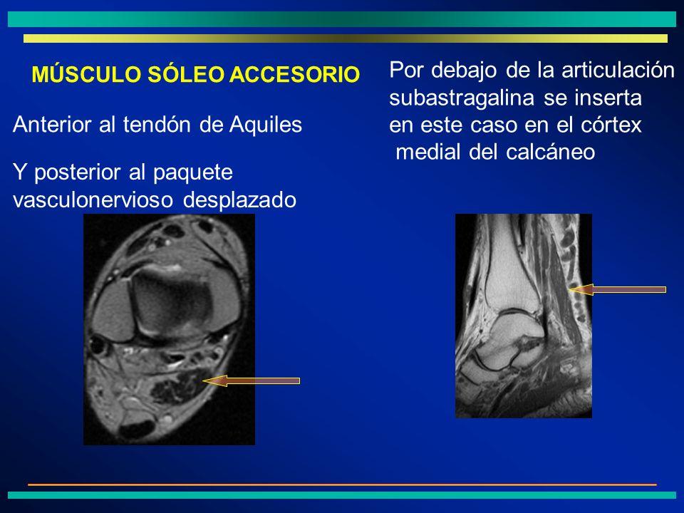 Por debajo de la articulación subastragalina se inserta