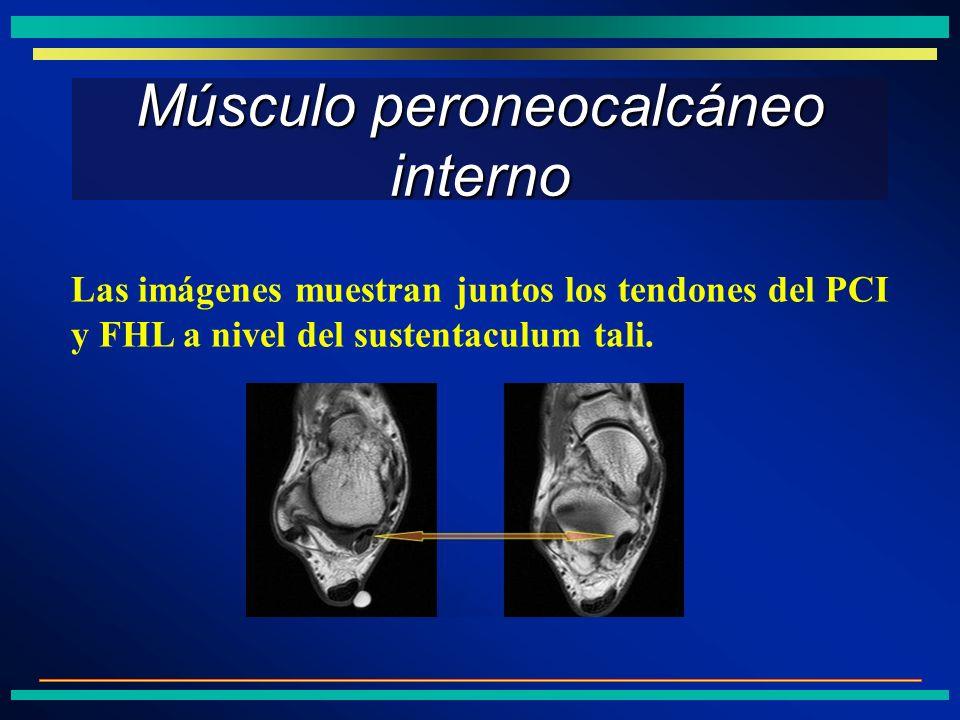 Músculo peroneocalcáneo interno