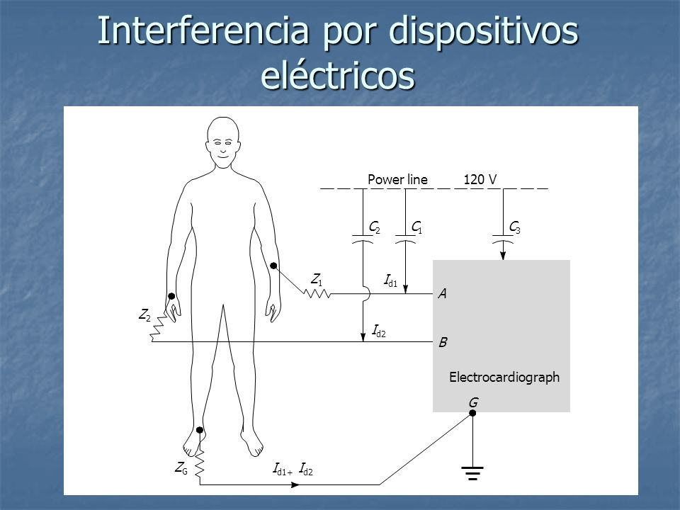 Interferencia por dispositivos eléctricos