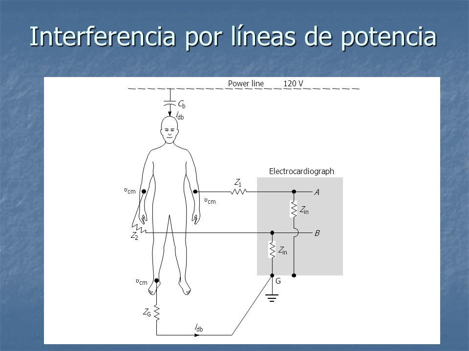 Interferencia por líneas de potencia