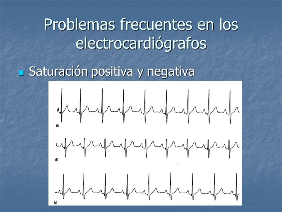 Problemas frecuentes en los electrocardiógrafos