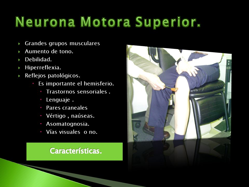 Neurona Motora Superior.