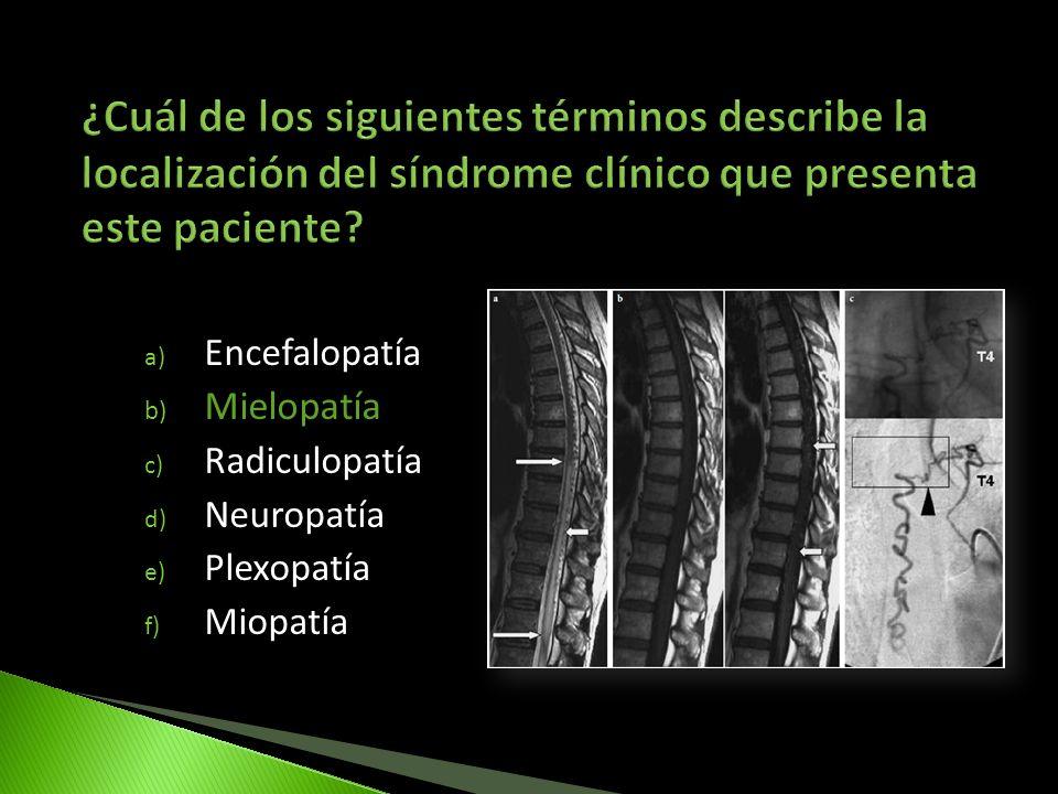 ¿Cuál de los siguientes términos describe la localización del síndrome clínico que presenta este paciente