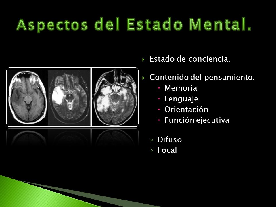 Aspectos del Estado Mental.