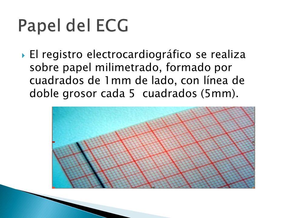 Papel del ECG