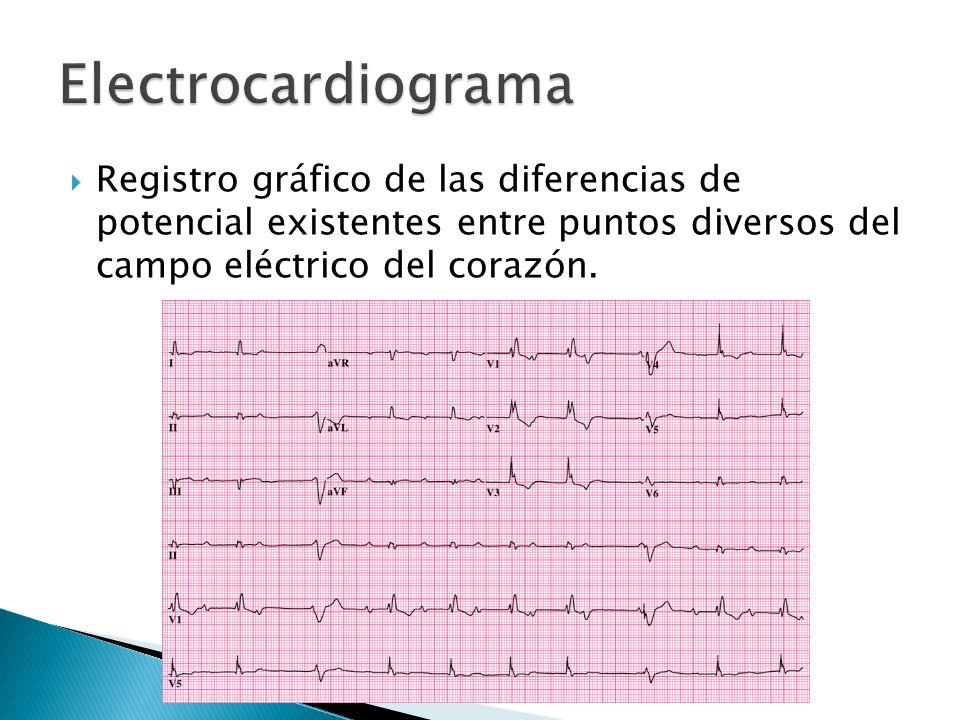Electrocardiograma Registro gráfico de las diferencias de potencial existentes entre puntos diversos del campo eléctrico del corazón.