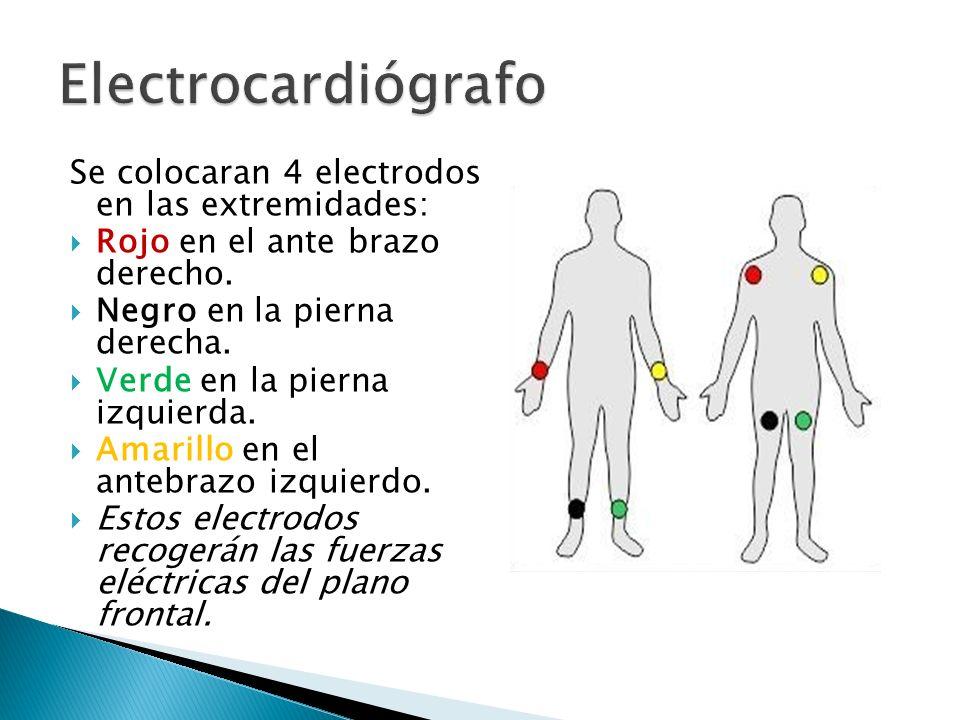 Electrocardiógrafo Se colocaran 4 electrodos en las extremidades: